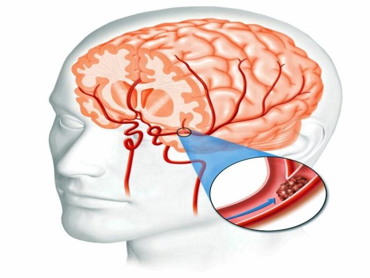 Как распознать первичные симптомы инсульта по языку и улыбке