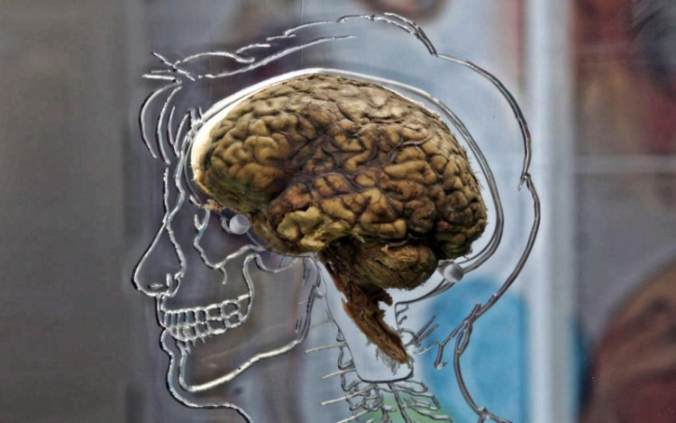 Мозг хорош в своей скорости: как проверить, насколько быстро вы мыслите и не тупите