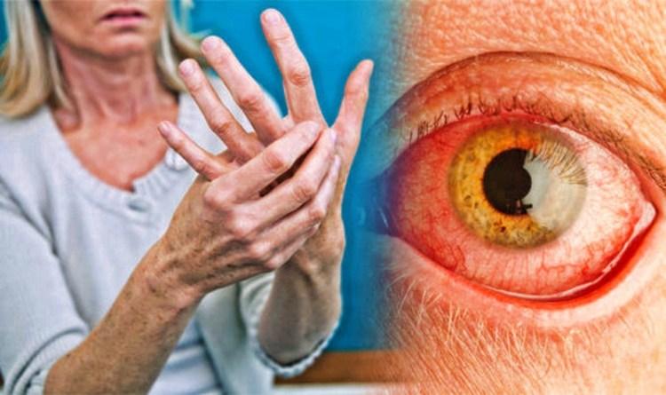Ревматоидный артрит: как с помощью чашки чая облегчить боль в суставах