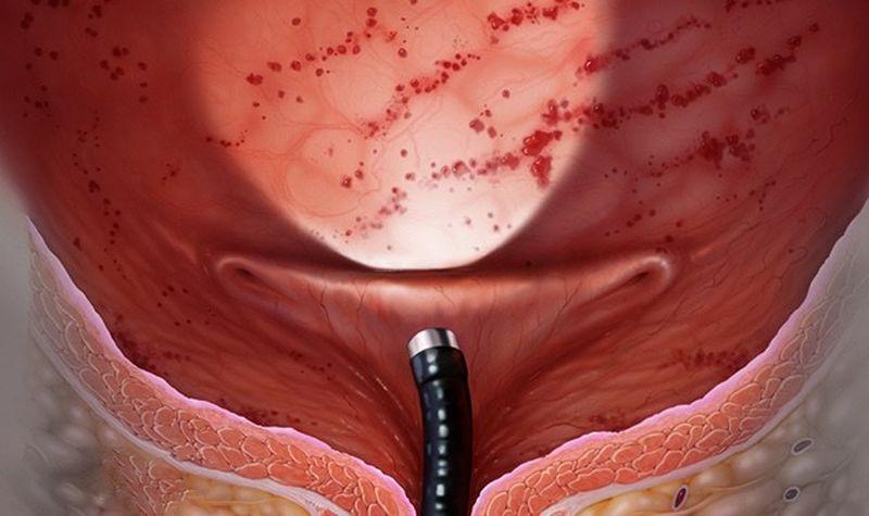 Как правильно лечить цистит?