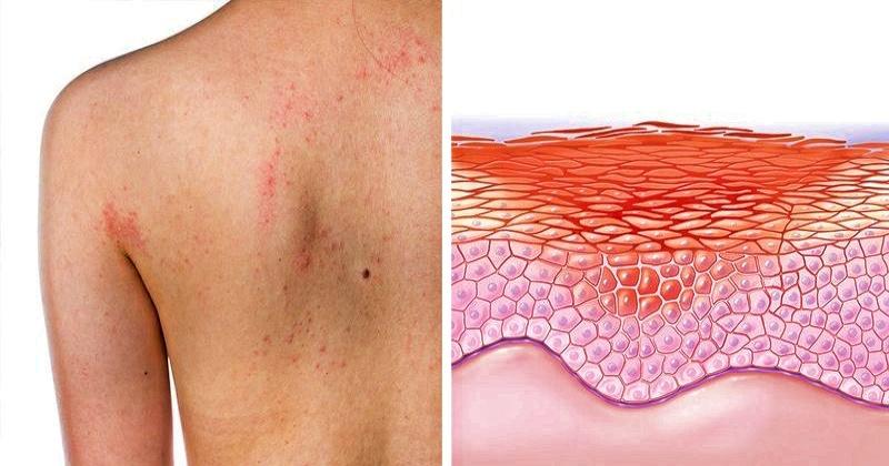 Как кожа человека сигналит про серьезные внутренние болезни