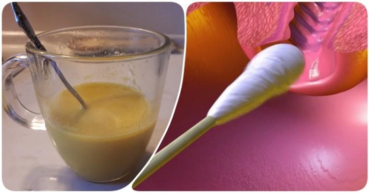 Неприятный запах из влагалища: 9 домашних лекарств при гарднереллезе