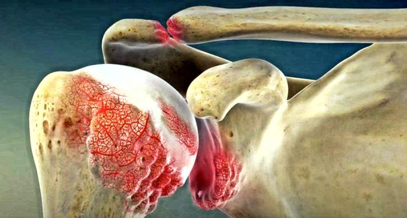 10 верных симптомов артрита: как предупредить страдания в суставах