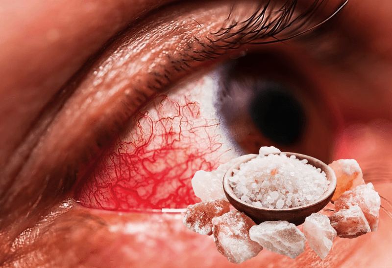 Вкратце о том, как лечится глазная инфекция с помощью таких средств, как солевой раствор, мед, горячий компресс. Особое внимание заслуживает очищение соленой водой. Соленая вода и лечение солью эффективно устраняют воспалительный процесс.
