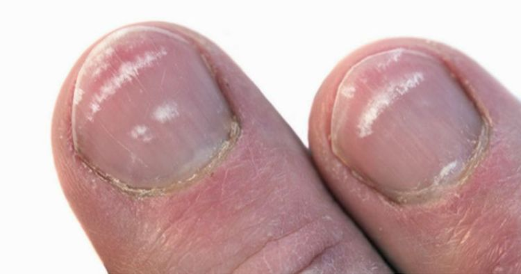 Почему белые полоски на ногтях к беде: ногти как показатель здоровья всего организма