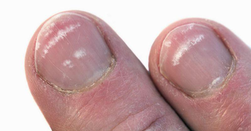 Белые и темные полоски на ногтях