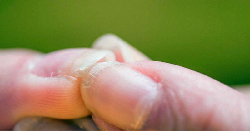 Трещины на ногтях и расслоение ногтей
