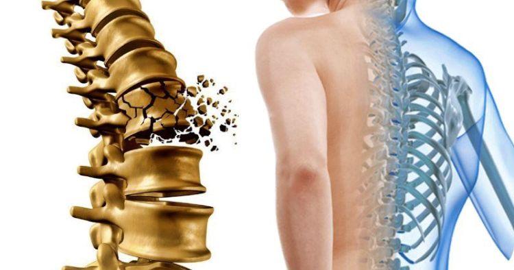 Остеопороз на раннем этапе: 5 главных признаков, которые важно не пропустить