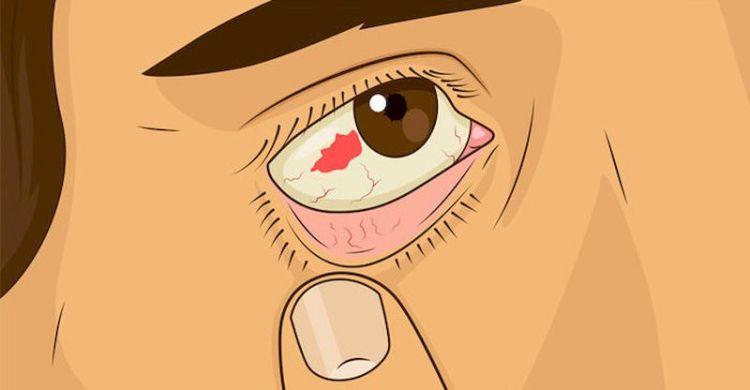 Глаза, в которых живет болезнь: 11 глазных симптомов, указывающих на неполадки со здоровьем