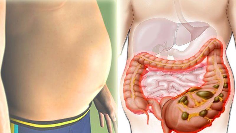 Кишечные газы и лишний вес: ученые выяснили, худеем ли мы, когда пукаем