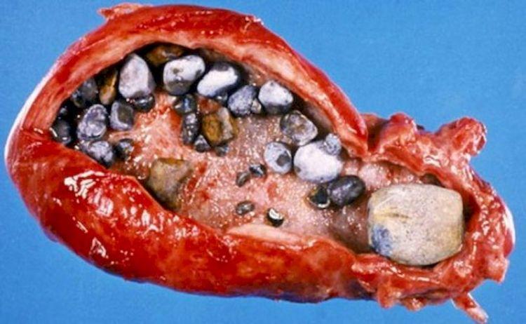 Где чаще всего в организме образуются камни и как их выявить