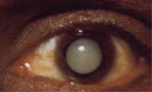 Treatment of Cataracts