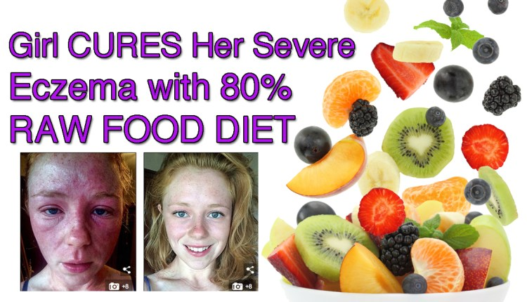 Girl Cures Her Severe Eczema with 80% Raw Food Diet