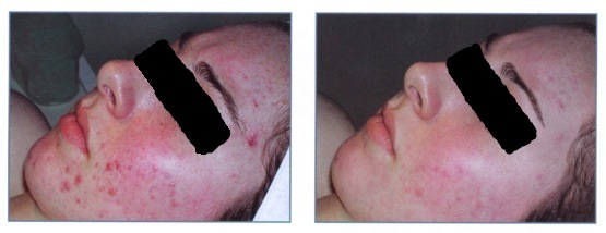 Acne - Before & After - HEAL Wellness Center and Spa