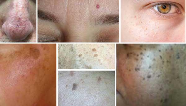 Skin Perfect - Heal NJ