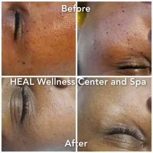 Before - After 1 - Heal NJ