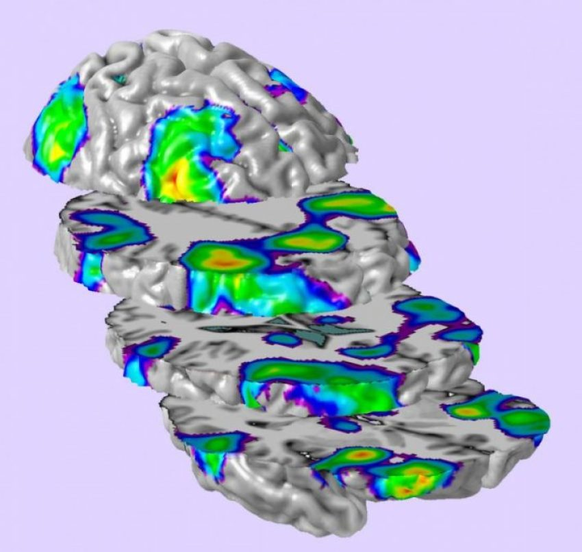 fMRI Scan of Working Memory Activation in Typically-Developing Children.  Credit:  Children's Hospital Los Angeles