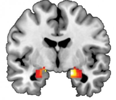 This image of the brain shows the amygdala, a region of that helps shape behavioral and biological responses to threat the stress. The amygdala is a region in the temporal lobe of the brain that helps shape behavioral and biological responses to threat and stress.  Credit: Douglas Williamson, Ph.D.
