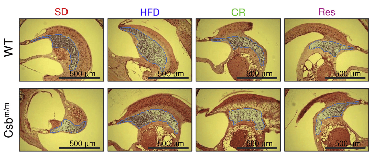 A HFD Increases b-OHB Levels and Rescues the Neurological Phenotype of Csbm/m Mice.   Representative histological images of hematoxylin-and-eosin-stained sections of the inner ear (blue highlight: spiral ganglion).  A High-Fat Diet and NAD+ Activate Sirt1 to Rescue Premature Aging in Cockayne Syndrome.  Bohr et al 2014.