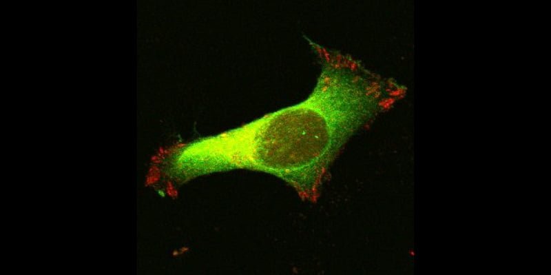 New super-resolution microscope sees single molecules of enzyme at work in a liver cancer cell line.  Credit:  The Centenary Institute.