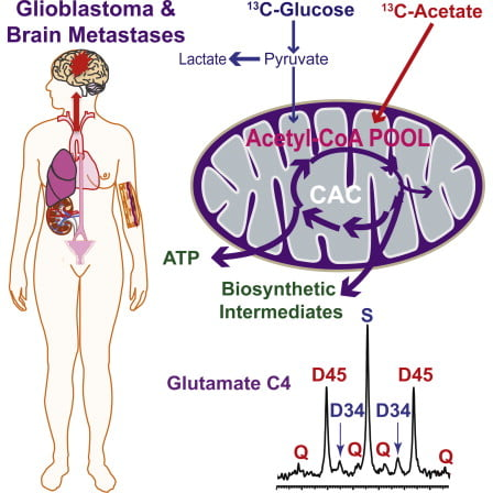 Glioblastomas and brain metastases are highly proliferative brain tumors with short survival times. Previously, using 13C-NMR analysis of brain tumors resected from patients during infusion of 13C-glucose, we demonstrated that there is robust oxidation of glucose in the citric acid cycle, yet glucose contributes less than 50% of the carbons to the acetyl-CoA pool. Here, we show that primary and metastatic mouse orthotopic brain tumors have the capacity to oxidize [1,2-13C]acetate and can do so while simultaneously oxidizing [1,6-13C]glucose. The tumors do not oxidize [U-13C]glutamine. In vivo oxidation of [1,2-13C]acetate was validated in brain tumor patients and was correlated with expression of acetyl-CoA synthetase enzyme 2, ACSS2. Together, the data demonstrate a strikingly common metabolic phenotype in diverse brain tumors that includes the ability to oxidize acetate in the citric acid cycle. This adaptation may be important for meeting the high biosynthetic and bioenergetic demands of malignant growth.  Acetate Is a Bioenergetic Substrate for Human Glioblastoma and Brain Metastases.  Bachoo et al 2014.
