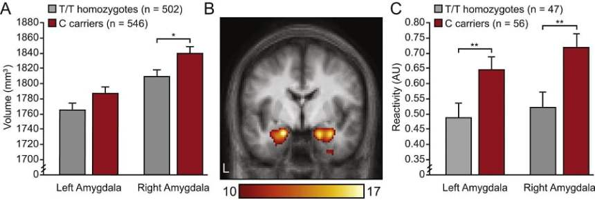 Increased amygdala volume and heightened reactivity in rs10875995 C allele carriers relative to T/T homozygotes. (A) Mean (and SE) amygdala volumes after partialing out variance associated with site, console software version, age, sex, handedness, and intracranial volume. (B) Coronal slice (y = −4) showing task-evoked amygdala reactivity (faces > shapes). Color bar reflects T scores (p < .0001 family-wise error-corrected). (C) Mean (and SE) amygdala reactivity after partialing out variance associated with site, console software version, age, and sex. *p < .05, **p < .01. AU, arbitrary units.  The Human Ortholog of Acid-Sensing Ion Channel Gene ASIC1a Is Associated With Panic Disorder and Amygdala Structure and Function.  Smoller et al 2014.