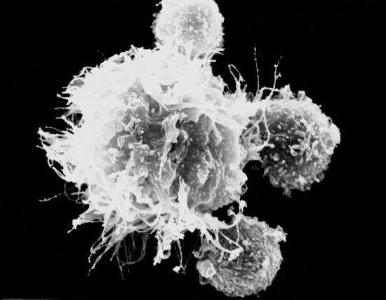 T cells surrounding a dendritic cell | © DKFZ / Markus Feuerer.