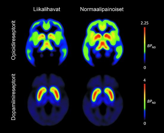 Obesity is associated with lowered opioid receptor availability (top row) whereas availability of dopamine receptors remains unchanged. Brains in the left column belong to obese people and brains in the right column to normal-weight people.  Credit:  Aalto University.