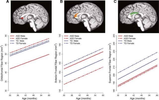 Sex differences in cortical projection zone subregions across three MRI time points. Estimated trajectories depicted were estimated for TCV equal to the time 1 average for TD children before the scanner upgrade. (A) The orbitofrontal fiber region is smaller in males with ASD than in TD males but does not differ in females. (B) The anterior frontal fiber region is smaller in females with ASD than in TD females. In males, the opposite pattern is observed; males with ASD are larger than TD males. (C) The superior frontal fiber region is smaller in both males and females with ASD than TD counterparts, though the difference is larger in females.  Sex differences in the corpus callosum in preschool-aged children with autism spectrum disorder.  Nordahl et al 2015.