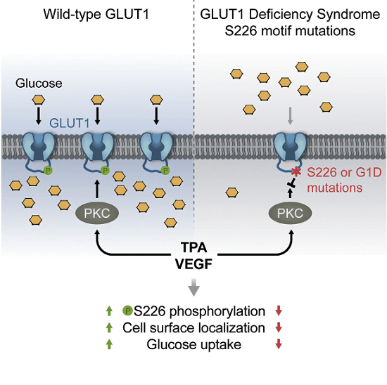 Protein kinase C has been implicated in the phosphorylation of the erythrocyte/brain glucose transporter, GLUT1, without a clear understanding of the site(s) of phosphorylation and the possible effects on glucose transport. Through in vitro kinase assays, mass spectrometry, and phosphospecific antibodies, we identify serine 226 in GLUT1 as a PKC phosphorylation site. Phosphorylation of S226 is required for the rapid increase in glucose uptake and enhanced cell surface localization of GLUT1 induced by the phorbol ester 12-O-tetradecanoyl-phorbol-13-acetate (TPA). Endogenous GLUT1 is phosphorylated on S226 in primary endothelial cells in response to TPA or VEGF. Several naturally occurring, pathogenic mutations that cause GLUT1 deficiency syndrome disrupt this PKC phosphomotif, impair the phosphorylation of S226 in vitro, and block TPA-mediated increases in glucose uptake. We demonstrate that the phosphorylation of GLUT1 on S226 regulates glucose transport and propose that this modification is important in the physiological regulation of glucose transport.  A Protein Kinase C Phosphorylation Motif in GLUT1 Affects Glucose Transport and is Mutated in GLUT1 Deficiency Syndrome.  Wang et al 2015.