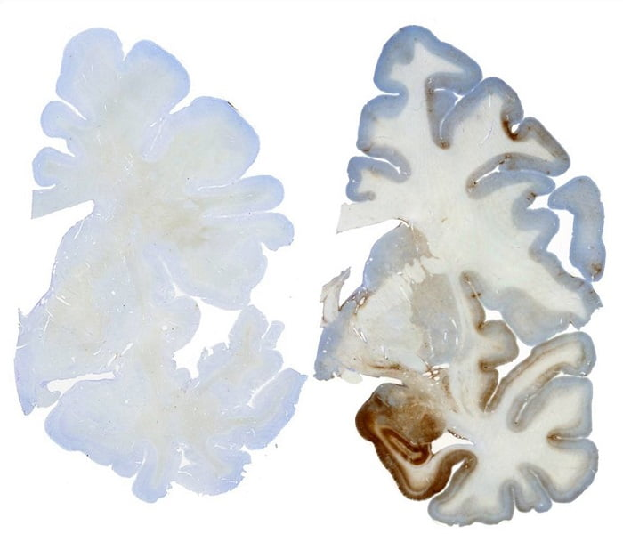 Stained whole brain section with immuno- staining for tau protein. Note the preferred deposition in the mesial temporal lobe structures.  AANS Neurosurgeon 2011.