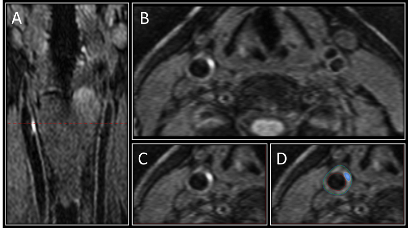 Image A shows the 3-D MRI intraplaque hemorrhage (IPH) sequence as acquired in the coronal plane. The red dotted line indicates the level at which the reformatted axial plane, B, was obtained. C shows the section of the right carotid artery with a region of high signal consistent with IPH. Contours are drawn for the outer wall (green) and lumen (red) with the area of IPH in this segment shaded blue in D.  Credit: Radiological Society of North America.