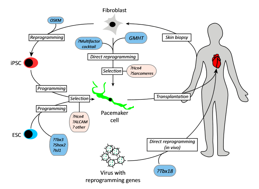 Can Pacemaker-Like Cells be Derived or Programmed from Non-Pacemaker Cells?  This model figure displays several strategies to create a biological pacemaker through derivation of pacemaker cells (PCs) from fibroblasts, pluripotent cells, or resident cardiomyocytes, as enumerated in Table 1 (main text). First, patient-derived fibroblasts could be cultured and directly reprogrammed to PCs using multifactor cocktails, or via Gata4, Mef2C, Hand2, Tbx5 (GMHT) induction. Subsequently, selection for Hcn4 expression and for contractile apparatus could ensue. Alternatively, pluripotent cells [embryonic stem (ES) cells or induced pluripotent stem cells (iPSC)] could be programmed with PC-specific transcriptional regulators, or differentiated into cardiomyocyte progenitors with subsequent selection for PC-like cells. Finally, viral vectors could be delivered directly into the heart, attempting to reprogram resident cardiomyocytes into PCs in vivo.  New Approaches to Biological Pacemakers: Links to Sinoatrial Node Development.  Vedantham et al 2015.