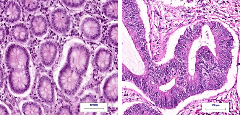 Left: normal colon tissue under the microscope. Right: colon cancer under the microscope. From CAP: MyBiopsy