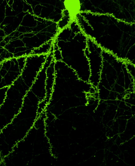 Tiny thornlike structures along the branches of this neuron are dendritic spines, which form the receiving end of synapses. Treatment with a novel compound induced the cell to sprout 20 to 25 percent more spines than a normal, untreated neuron.  Credit: Jessica Cifelli.