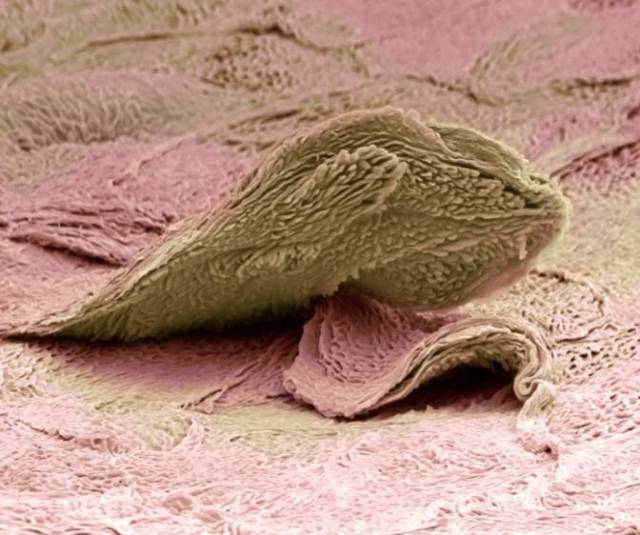 Skin cell. Coloured scanning electron micrograph (SEM) of a squamous cell on the surface of the skin. This is a flat, keratinised, dead cell. Squamous cells are continuously sloughed off and replaced with new cells from below. Magnification: x4000 when printed at 10 centimetres wide.  Credit: Science Photo Library - STEVE GSCHMEISSNER.