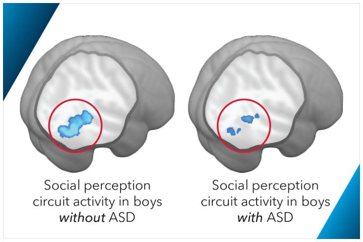 These brain scan images show social perception circuit activity in boys with ASD and without ASD.  Credit: The George Washington University.