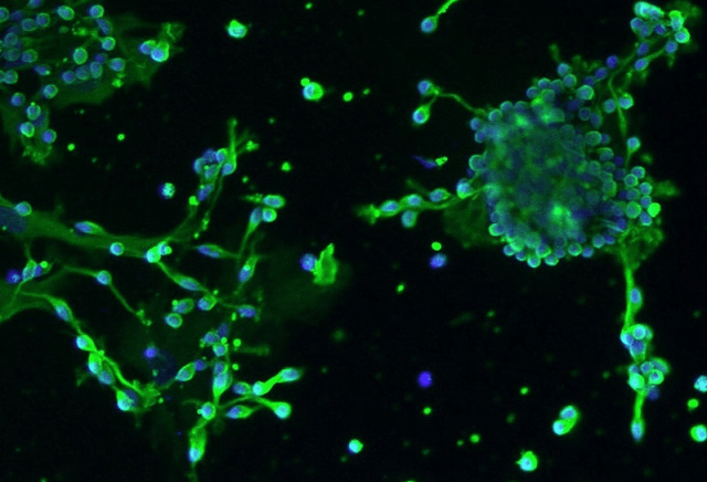 Human Oligodendrocyte Precursor Cell-oligospheres (HOPC-os) - Immunostaining for A2B5 after differentation for 1 day, 100x.  © 2016 ScienCell Research Laboratories.