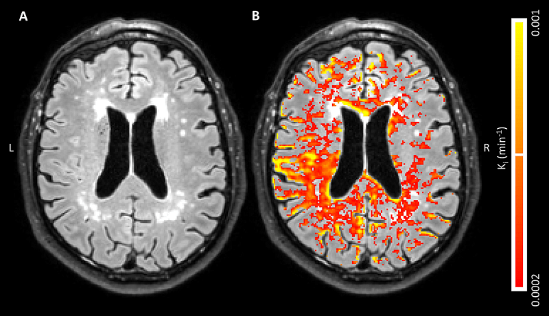 A, Axial fluid-attenuated inversion recovery image in a 68-year-old man with, B, corresponding blood-brain barrier leakage rate (Ki) maps superimposed. Leakage rate values appear diffusely distributed on both images, with some periventricular hot spots. Leakage manifests in normal-appearing white matter, white matter hyperintensities and gray matter. Voxels with low signal-to-noise ratio in MRI signal intensity were removed, and leakage rate map was masked to cerebrum.  Credit: Maastricht University Medical Center in Maastrich.