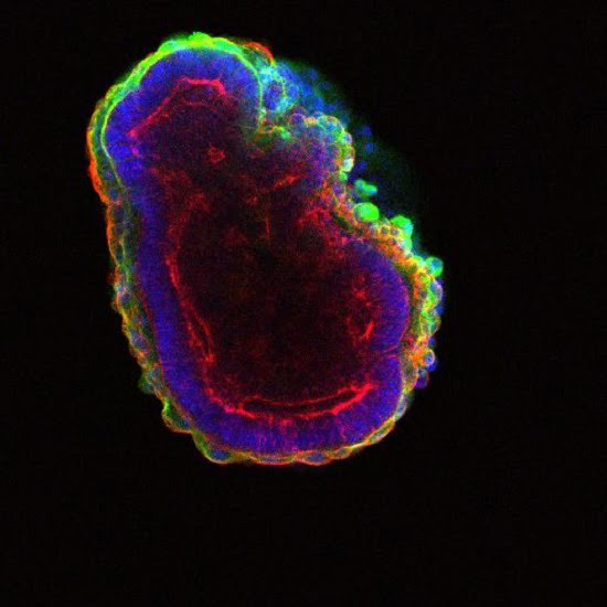 Stem cells self-organize to form a hollow ball of cells.  Credit: In Kyoung Mah, Francesca Mariani.