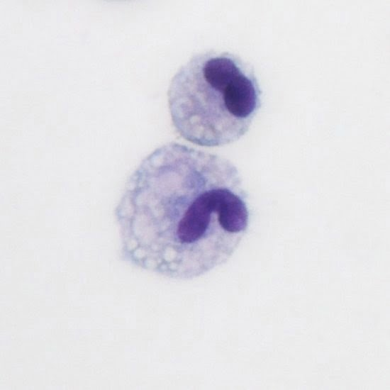 St. Jude Children's Research Hospital researchers have identified a new population of resident lung macrophages (pictured here), which they called vaccine-induced macrophages or ViMs.