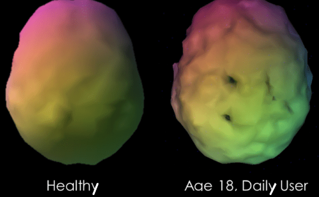 This shows a sample case of a visual 3-D rendering of a baseline SPECT scan of a longstanding marijuana user compared to a control subject. The marijuana user has multiple perfusion defects with lower perfusion shown as scalloping and gaps in perfusion of the temporal and parietal areas. Credit: IOS Press.
