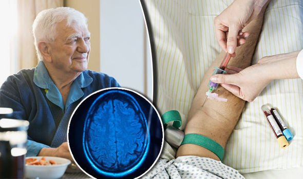 ft-human-study-identifies-biomarker-in-blood-for-alzheimers-disease