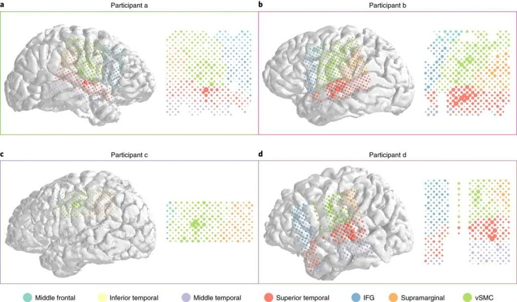 a study from researchers at the University of California, San Francisco develops an algorithm that can turn brain activity into text in realtime. The team states they use an electrocorticogram (ECoG), an electrical monitoring technique that records activity in the cerebral cortex via electrodes placed directly on the exposed brain, to detect and decode neural patterns into text while the person is speaking out loud.
