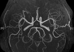 Direct to Angiography Suite improves functional outcomes in LVO strokes shortly after the onset of symptoms