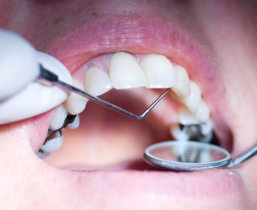 Do You Worry About Mercury In Your Silver Dental Fillings