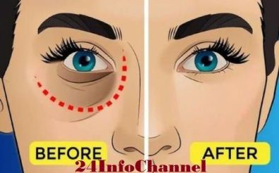 remove-dark-circles-under-eye-bags-with-baking-soda-lemon