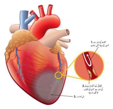 دل کی شریانوں میں رکاوٹ کی علامات 1