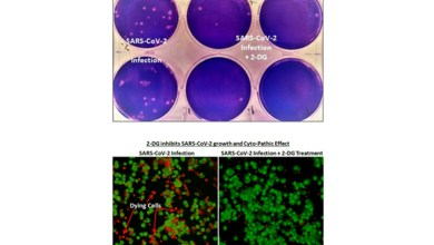 New collaboration for affordable COVID-19 drug 2-DG