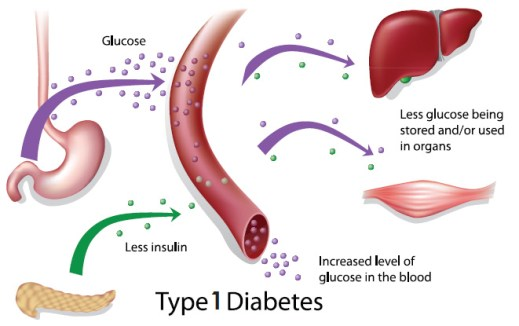 photo-about-diabetes-2